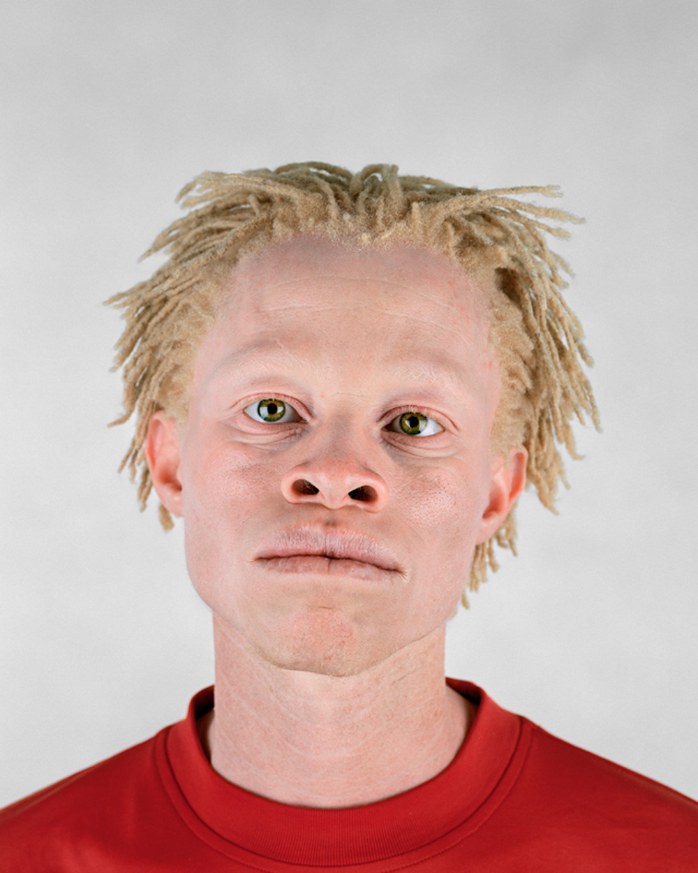 albino black people